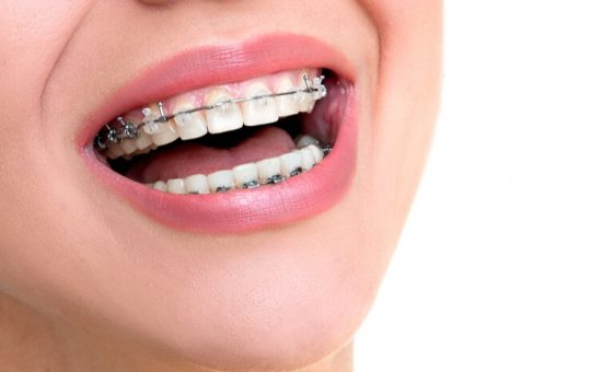 The best teeth straightening options and benefits